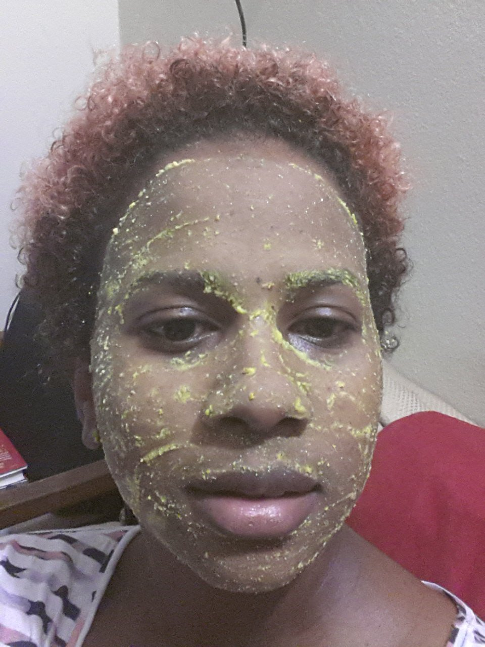 Natural dark spot remedies for acne and hyperpigmentation
